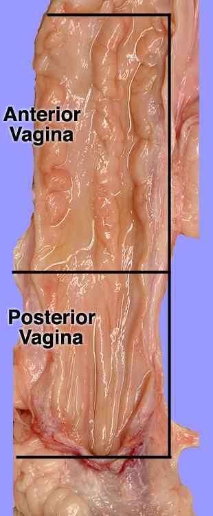 vaginal_label.jpg