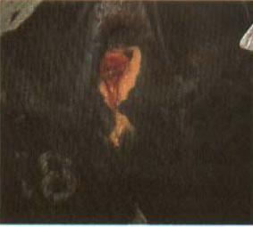rektovaginalna-fistula_2011-06-21-3.jpg
